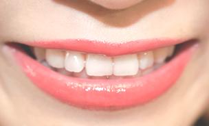 \ 歯石の染め出し・除去 /
