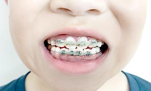 \ 歯並びの矯正 /