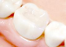 歯並びをきれいに整えるセラミック治療
